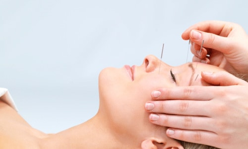 Woman receiving holistic acupuncture